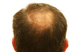 foto of bald headed  - male head with hair loss symptoms - JPG