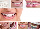 stock photo of braces  - dental braces  - JPG