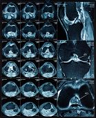 stock photo of magnetic resonance imaging  - Magnetic resonance tomography  - JPG