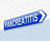 Pancreatitis Concept.