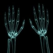 X-ray Left And Right Hands