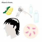 stock photo of alopecia  - Medical Concept Illustration of Alopecia Areata or Hair Loss With Medical Prevention and Treatment - JPG