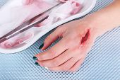 pic of pus  - Injured hand with blood on table in hospital - JPG