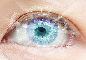 stock photo of cataracts  - Close - JPG
