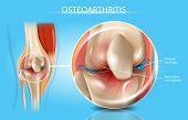 Osteoarthritis Vector Medical Poster With Magnification Of Thinned Cartilage, Bone Ends Rub Together poster