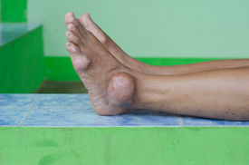 stock photo of gout  - foot of gout patient - JPG