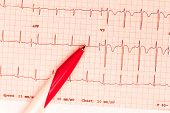 Cardiogram And Technical Pen. Close Up. Object. Macro Photography poster
