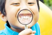 picture of tooth gap  - Young asian boy showing his healthy teeth through hand magnifier