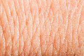 Close Up Human Skin. Macro Epidermis