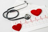 stethoscope and two red heart on electrocardiogram