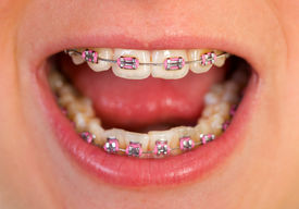 foto of overbite  - Close up of a beautiful pink braces  - JPG