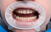 Dental Fluorosis poster