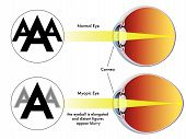 image of refraction  - medical illustration of the symptoms of myopia - JPG