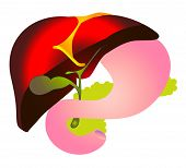 Vector Cheme Hepatitis B,hbv. Biliary System Hepatic Duct, Liver, Gallbladder, Cystic Duodenum,