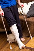 stock photo of crutch  - A man with broken foot tries to walk with crutches - JPG