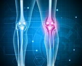 foto of knee  - Knee pain abstract background - JPG