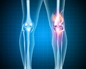 stock photo of knee  - Burning knee painful knee and normal knee joint abstract design - JPG