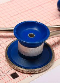image of ekg  - Medical stethoscope and electrocardiogram graph ekg heart rhythm medicine concept - JPG