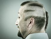 pic of half-shaved hairstyle  - Man with funny silly half bald hair - JPG