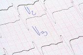 Gráfico de ECG con notas del Doctor