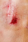 Close up on an adult scraped knee after fell down.