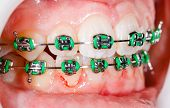 picture of overbite  - Closeup photo of orthodontic braces on teeth