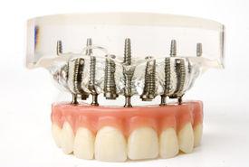 picture of overbite  - teeth implants model - JPG