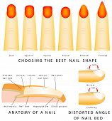 image of distort  - Nail shape - JPG