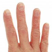 Closeup Of Eczema Dermatitis On Fingers