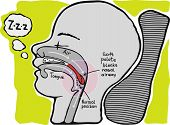 Snoring. Informational Graphics, Vector