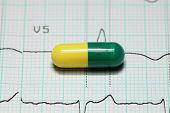Medicine and ECG