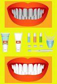 Bleaching Of Teeth
