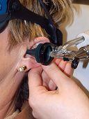 Exame de orelha