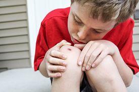 foto of scrape  - Young boy examining a scraped knee - JPG