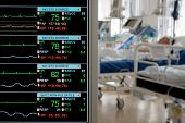 foto of icu  - monitoring in ICU with patients - JPG