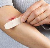Treating Cut On Arm