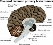 The most common primary brain tumors