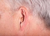 Cic Hearing Aid In The Ear