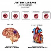 Постер, плакат: Artery Disease Atherosclerosis Stroke And Heart Attack