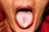 The Tongue Is In A White Raid. Candidiasis In The Tongue poster