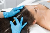 Beautician Injections For Healthy Hair Growth. Mesotherapy Of The Scalp. A Young Girl Is Undergoing  poster