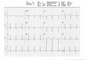 Ekg Or Ecg Result From A Treadmill Stress Test