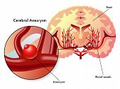stock photo of hemorrhage  - medical illustration of the symptoms of cerebral aneurysm - JPG