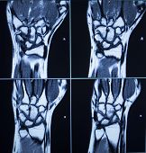 Mri Scan Test Results Wrist Hand Injury