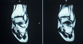 stock photo of magnetic resonance imaging  - MRI magentic resonance imaging nuclear scanning scan test results ankle injury photo.