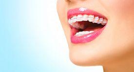 stock photo of lip  - Braces - JPG