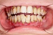 stock photo of bad teeth  - Human mouth before dental treatment plaque on teeth - JPG