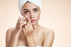 stock photo of ugly  - Woman with skin blemish isolated - JPG