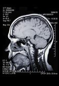image of mri  - A real MRI - JPG