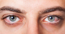 picture of irritated  - Close Up of two irritated red blood eyes - JPG
